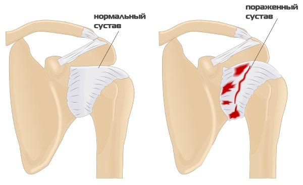 Причины хруста в суставах по всему телу у ребенка, подростка, взрослого. Лечение народными средствами, медикаменты