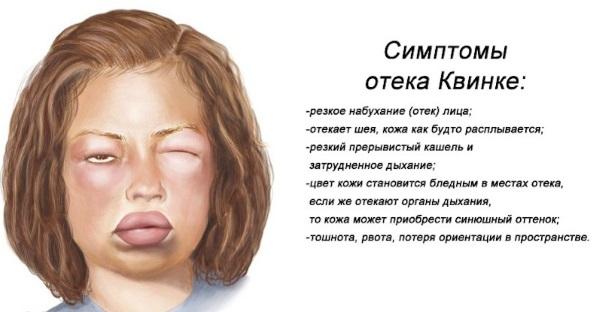 Крапивница: фото, симптомы и лечение у взрослых, детей. Как выглядит аллергическая, идиопатическая, острая, хроническая, холодовая. Препараты, диета, мази