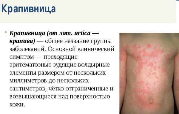 Крапивница: симптомы и лечение у взрослых, детей. Как выглядит аллергическая, идиопатическая, острая, хроническая, холодовая. Препараты, диета