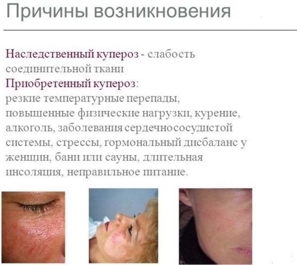 Купероз - что это за болезнь, фото на лице, причины и лечение в домашних условиях