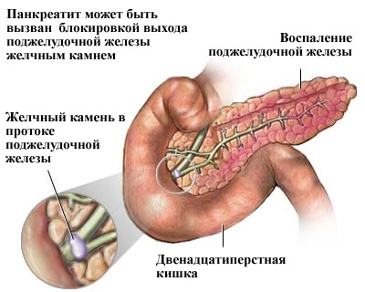 Панкреатин. Инструкция по применению, состав, свойства. От чего помогает взрослым и детям