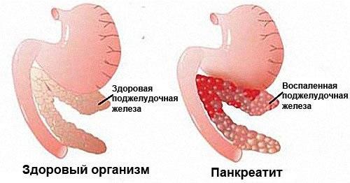 Поджелудочная железа. Симптомы и лечение заболевания у взрослых и детей. Диета