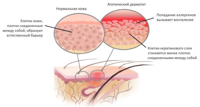 Причины и лечение зуда кожи тела с покраснением, высыпанием и без. Препараты в таблетках, мази, народные средства