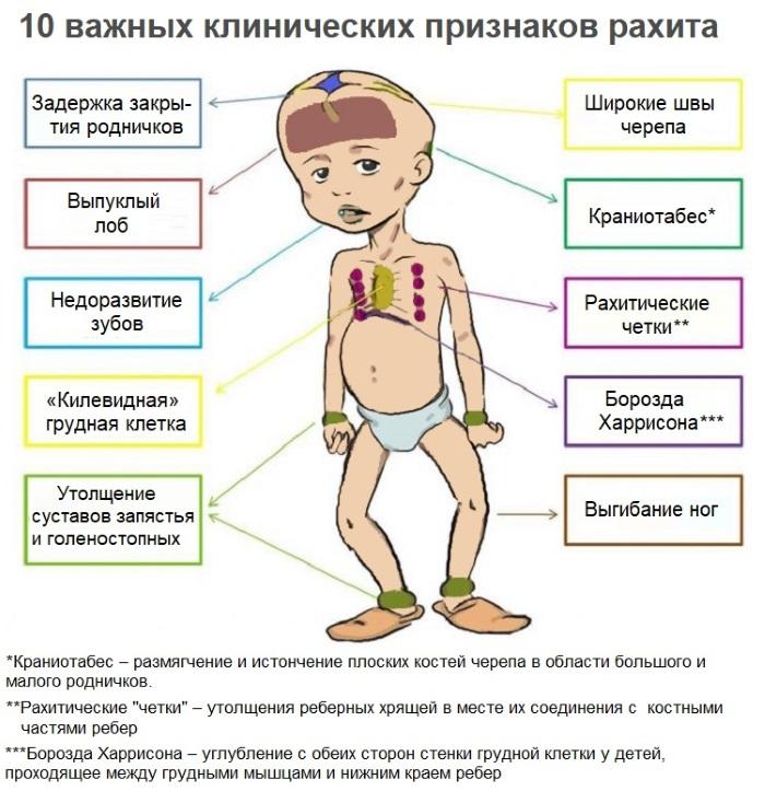 Швы черепа у новорожденного. Размеры родничков в норме, анатомия, когда зарастают