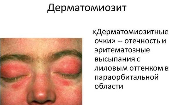 Зуд по всему телу без высыпаний: причины у ребенка, взрослого, женщин при беременности, если чешется. Лечение аллергии на коже в виде прыщиков с покраснением