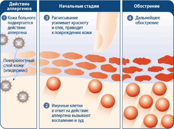 Атопический дерматит у детей. Фото, лечение на лице, ногах, руках. Народные средства, мази и крема. Причины, симптомы