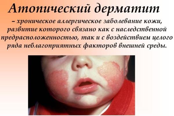 Атопический дерматит у ребенка: причины, как и чем лечить при обострении, на лице, щеках, попе, голове, ногах, руках. Лечение народными средствами, диета, меню