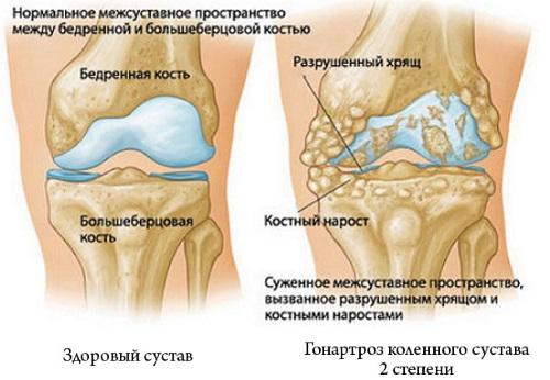 Боль в колене сбоку с внутренней стороны, внешней, наружной, от и до бедра. Причины и лечение. К какому врачу обратиться