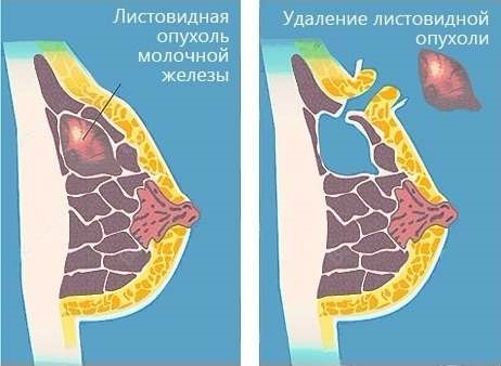 Фиброаденома молочной железы. Что это такое, признаки, как лечить народными средствами, операция. Листовидная, филлоидная, интраканаликулярная
