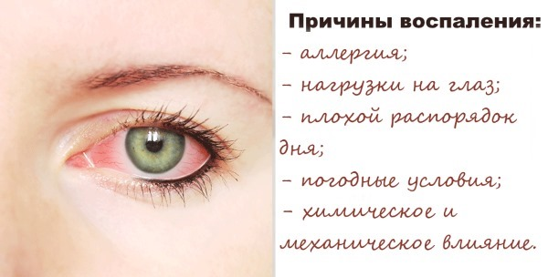 Лучшие глазные капли от покраснения и раздражения с отзывами и ценой: Визин, Тауфон, Эмоксипин, Левомицетин, Окуметил