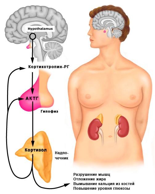 Кортизол повышен у женщин. Причины, симптомы, последствия, лечение в домашних условиях