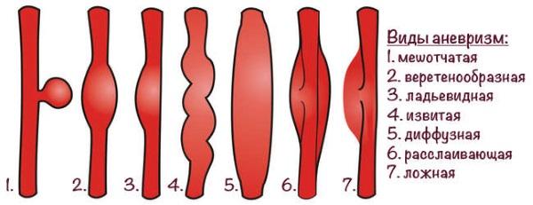 Немеют губы - причины, почему немеет верхняя, нижняя, уголки, язык. Что делать