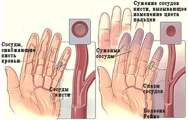 Немеют пальцы рук: причина и лечение: большой, мизинец, безымянный, указательный на левой и правой руке. С каким заболеванием связано