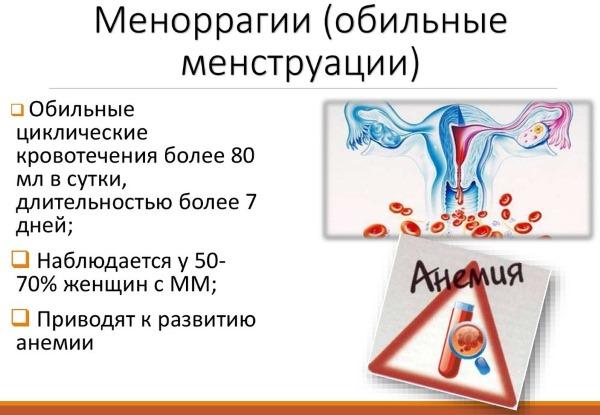 Обильные месячные со сгустками. Причины, как остановить таблетками, травами после задержки, родов, при климаксе