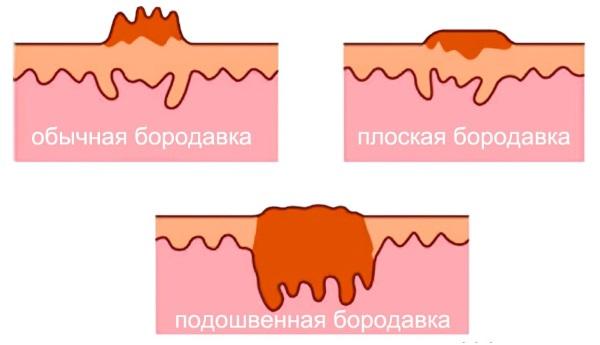 Салицилово цинковая паста. Инструкция по применению от прыщей, пота, лишая, запаха ног, бородавок, грибка ногтей, пигментных пятен, кожных заболеваний