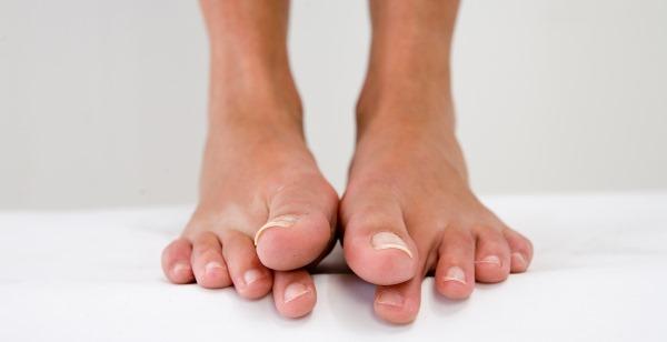Почему в бассейне сводит ноги судорогой