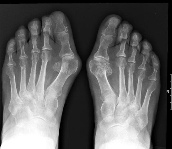 Вальгусная деформация стопы у детей, большого пальца. Фото, что это такое, степени, причины. Операция, упражнения, массаж
