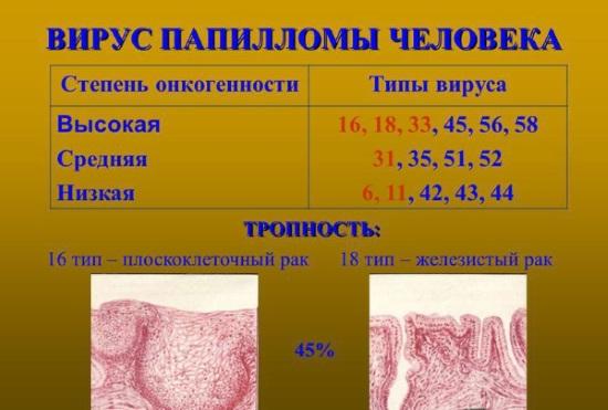 Вирус папилломы человека у женщин в гинекологии. Что это такое, чем опасен, причины, симптомы, как выглядит, передается. Диагностика, анализы, лечение