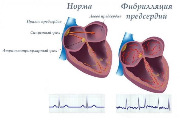 Аконит: показания к применению гомеопатии в народной медицине. Инструкция, как приготовить и принимать настойку