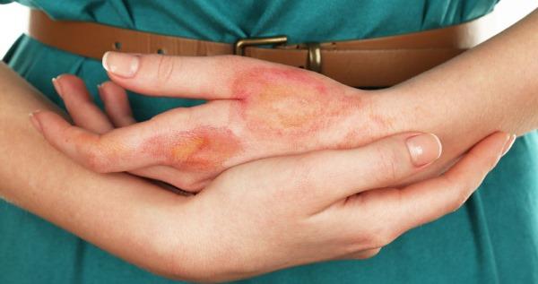 Аллергия на коже в виде красных пятен. Лечение на руках, ногах, шее у взрослых и детей, если чешутся