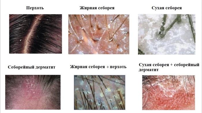 Белые пятна на коже - что это, разновидности, причины появления. Как лечить у взрослых и детей