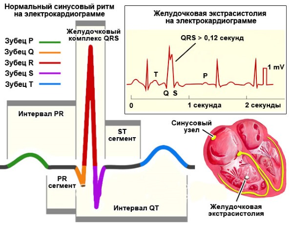 Экстрасистолия желудочковая, наджелудочковая, суправентрикулярная, предсердная. Что это такое, симптомы, лечение сердца, последствия
