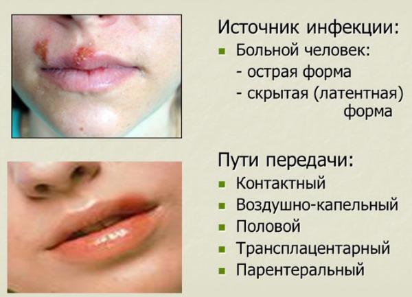Герпес на губах при беременности в первом, втором, третьем триместре. Чем лечить, последствия для ребенка. Мнения врачей