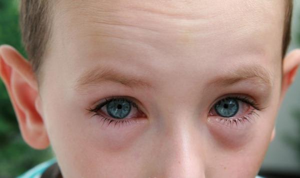 Глазные капли от конъюнктивита вирусного, бактериального, аллергического у детей и взрослых