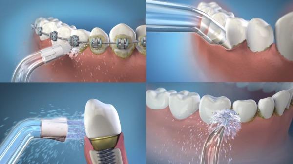 Ирригатор для полости рта. Рейтинг какой лучше, разновидности, особенности применения, преимущества и недостатки