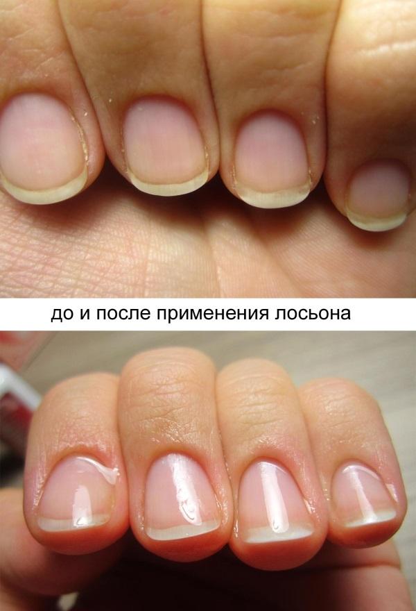 Лосьон Клавио для ногтей. Инструкция как применять. Фото, отзывы, цена