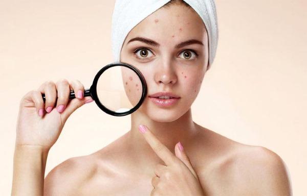 Люцерна. Полезные свойства, состав, особенности применения в лечении заболеваний, косметологии, для похудения