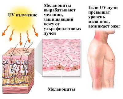 Меланин: что это такое, функции, выработка, симптомы недостатка и переизбытка, как восстановить гормон пигмента