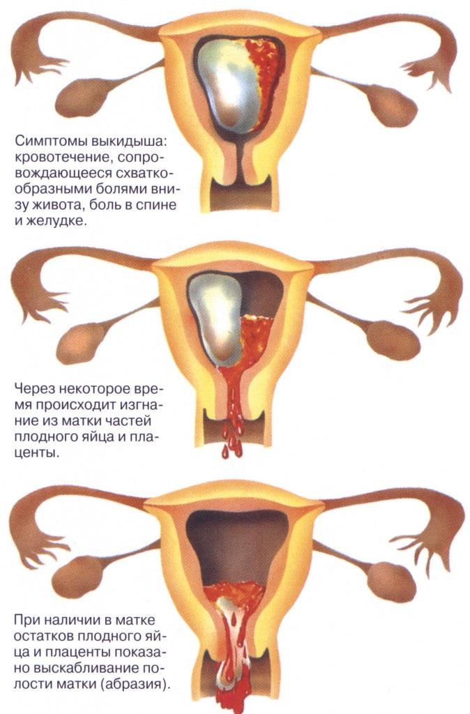 Менструальный цикл: что это, фазы, нарушения, как рассчитать начало, норма, сбой, как восстановить