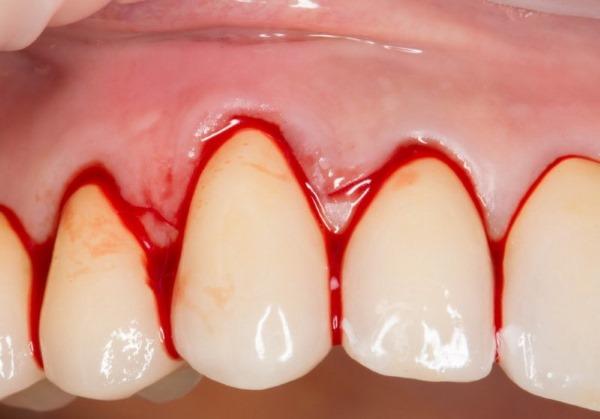Металлический привкус во рту. Причины с горечью, сухостью, при климаксе, беременности, кашле, после еды