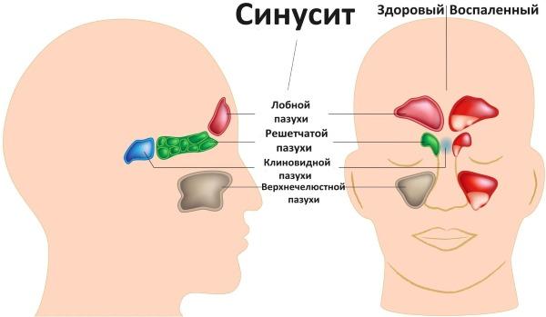 Что такое микоплазма у женщин. Симптомы и лечение народными средствами, препараты. Причины возникновения, как передается, анализ