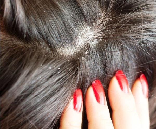 Миноксидил для волос и бороды. Инструкция по применению, аналоги. Цена в аптеке, где купить