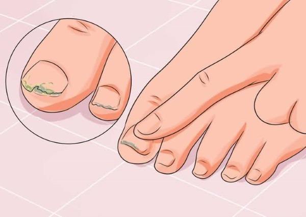 Мазь Ногтивит от грибка ногтей. Инструкция по применению, эффективность, как применять. Аналоги, цена, отзывы