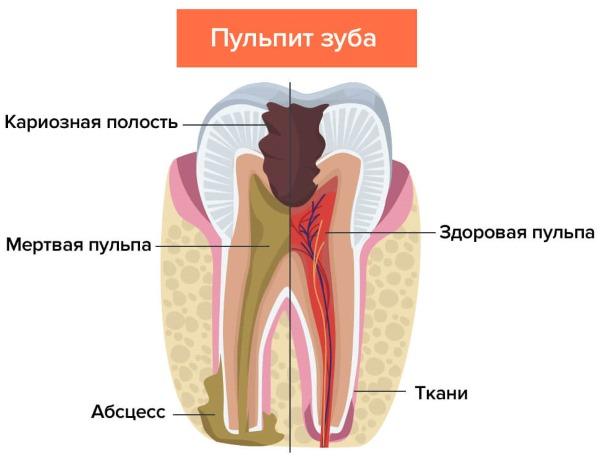 Обезболивающие таблетки при зубной боли после удаления, для беременных, при грудном вскармливании, для детей