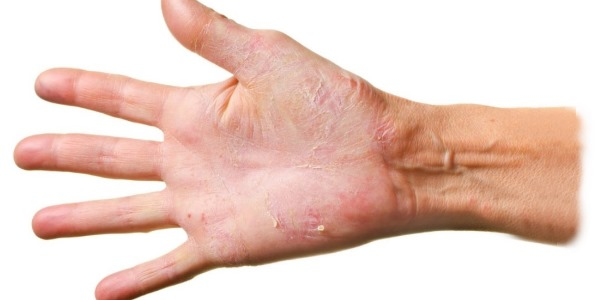 Облазит кожа на пальцах рук, ладонях, между пальцами у ребенка, взрослого. Причины и лечение