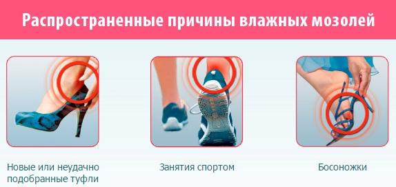 Пластырь от мозолей на ногах: сухих, влажных, натоптышей со стержнем, между пальцами: Компид, Салипод, силиконовый, гелевый
