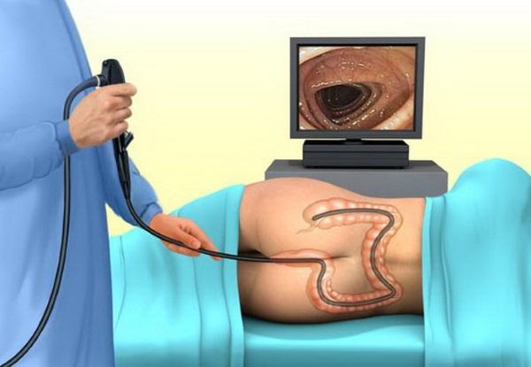Подготовка к колоноскопии кишечника. Что это такое, как к ней готовиться, бесшлаковая диета, меню, препараты