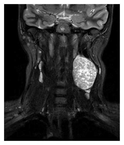 Причины увеличения лимфоузлов на шее. Симптомы и лечение у взрослых и детей