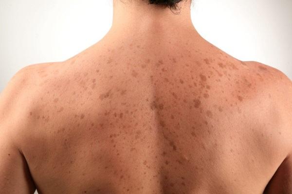 Розово коричневое пятно на коже