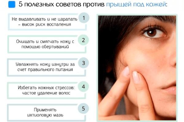 Средства от прыщей для подростков на лице: медикаментозные, косметические, народные