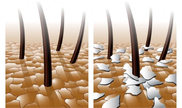 Сухая кожа головы и чешется – лечение. Маски, шампуни, масла, народные средства, правильное мытье головы