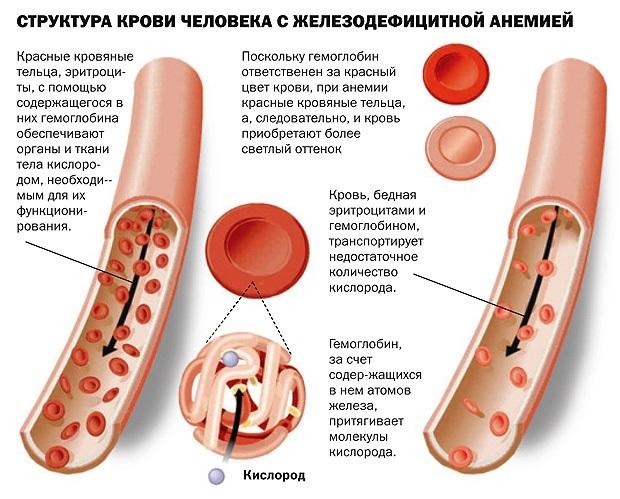 Таблица продуктов, богатые железом. При анемии, беременности, для детей, вегетарианцев, повышения гемоглобина