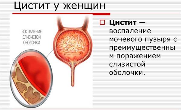 Трава Пол пала. Лечебные свойства, применение в народной медицине от камней в почках и желчном пузыре, других болезней. Противопоказания