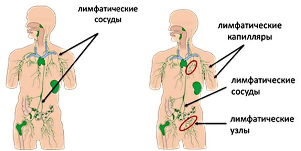 Воспаление лимфоузлов на шее сзади у ребенка