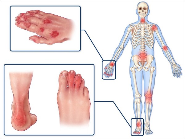 Артрит коленного сустава. Симптомы и лечение, диагностика. Как вылечить ревматоидный, реактивный, подагрический, острый