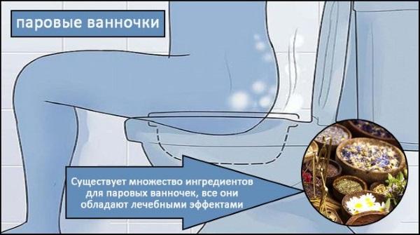 Бартолиновая железа. Где находится у женщин, причины воспаления, лечение в домашних условиях